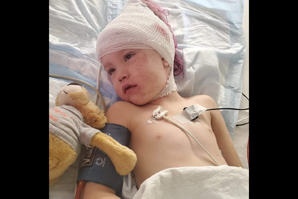 Four-year-old Alisynn Louiseize faces a long rehabilitation after surgery at Sick Kids to remove a brain tumour. Photo submitted.