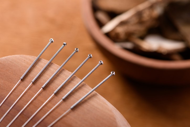 Acupuncture-Jordan Lye-Moment-Getty Images
