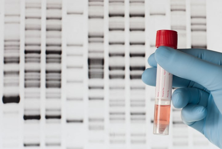 DNA-testing-zmeel-Eplus-Getty images