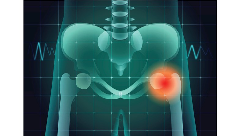 Hip-fracture-solar22-iStock-Getty Images Plus