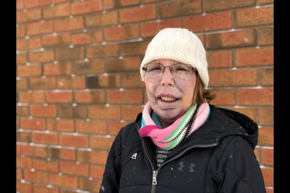 Jillian Barnes is a nurse in Collingwood and is part of a group of people with facial differences featured in a video meant to bring awareness and understanding and encourage people to look beyond her face. Erika Engel/CollingwoodToday