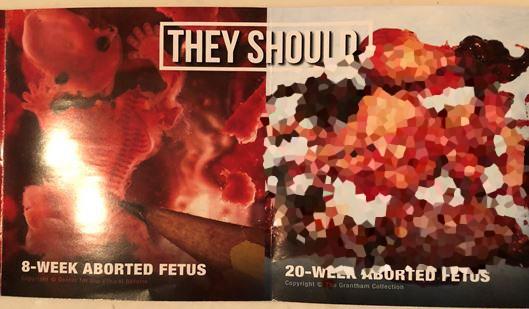 burnaby flyers anti-abortion
