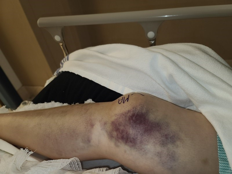 A Jan. 12 photo taken at Thompson General Hospital shows Carol Wood's leg before she had surgery for