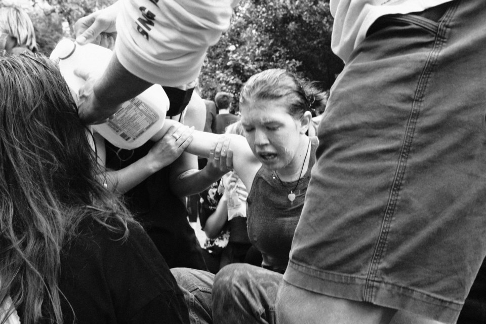 A protestor is treated with milk after being hit by police pepper spray.
