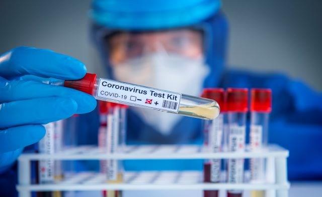 Coronavirus test kit 04292020