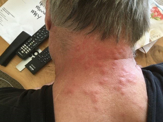 A local resident shows a rash attributed to European gypsy moths.