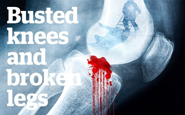 Busted knees and broken legs - Why ACL ski injuries have skyrocketed and what you can do about it. Story by Nicola Jones
