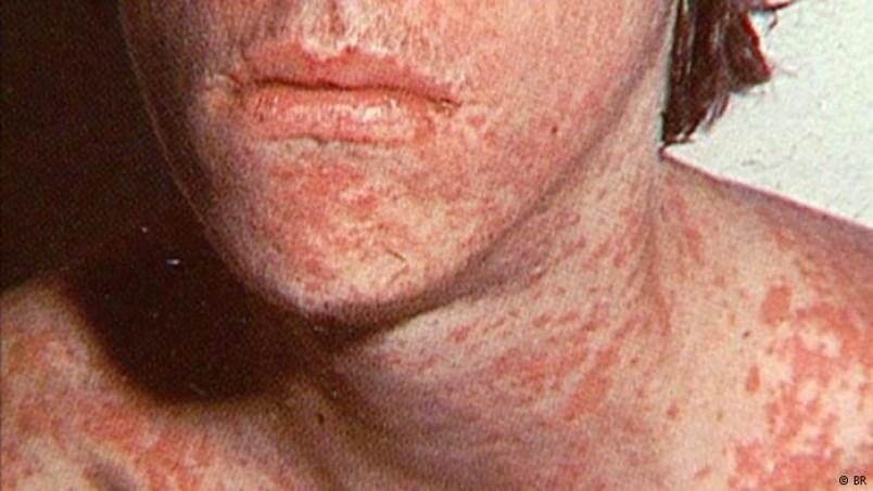 0127-measles