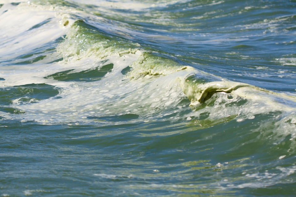 Increased incidence of harmful algae blooms, fish kills and technicolour water in Saskatchewan lakes are all symptoms of problems in the ecosystem.