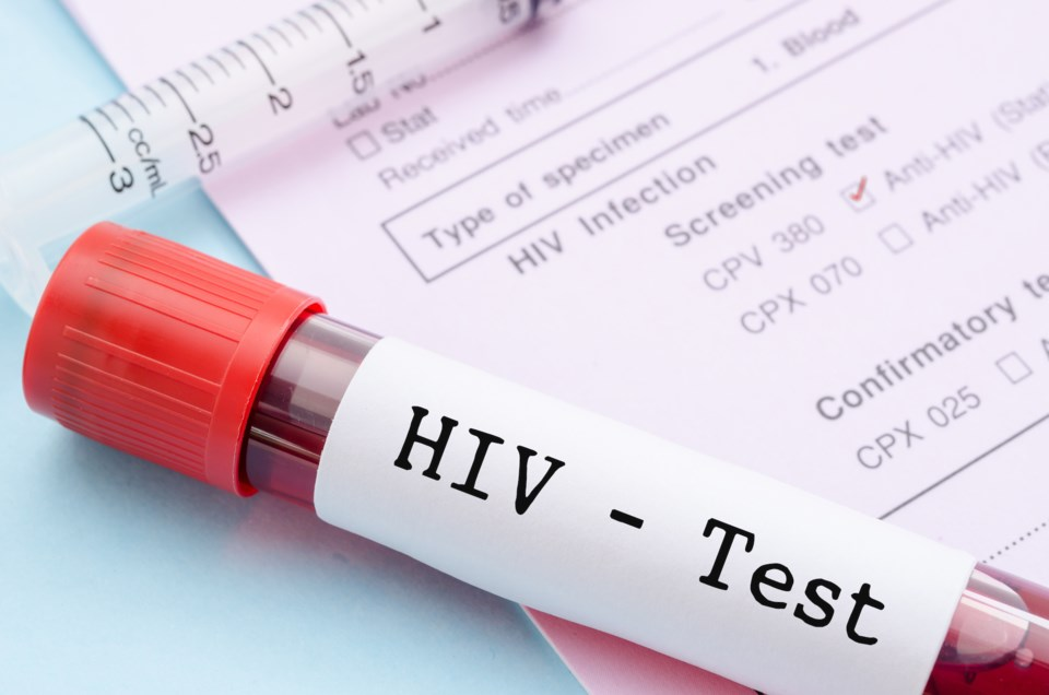 HIV test stock