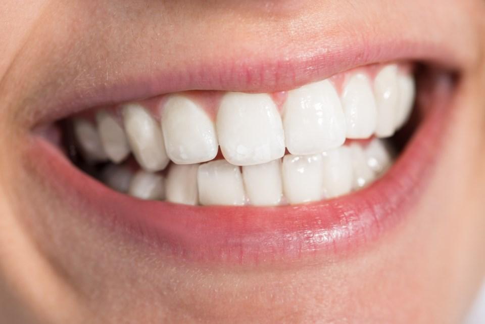 smile teeth white