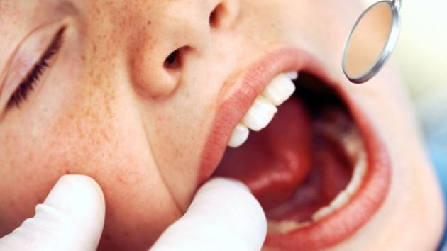 130717_dental_care_child