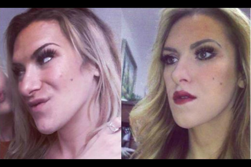 Rebecca Churanova before and after her surgery. (Supplied)