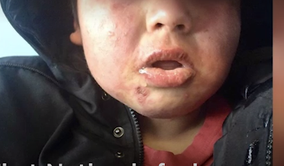 Children at Cat Lake developed skin rashes and respiratory problems. A State of Emergency was declared by the FIrst Nation in January 2019.