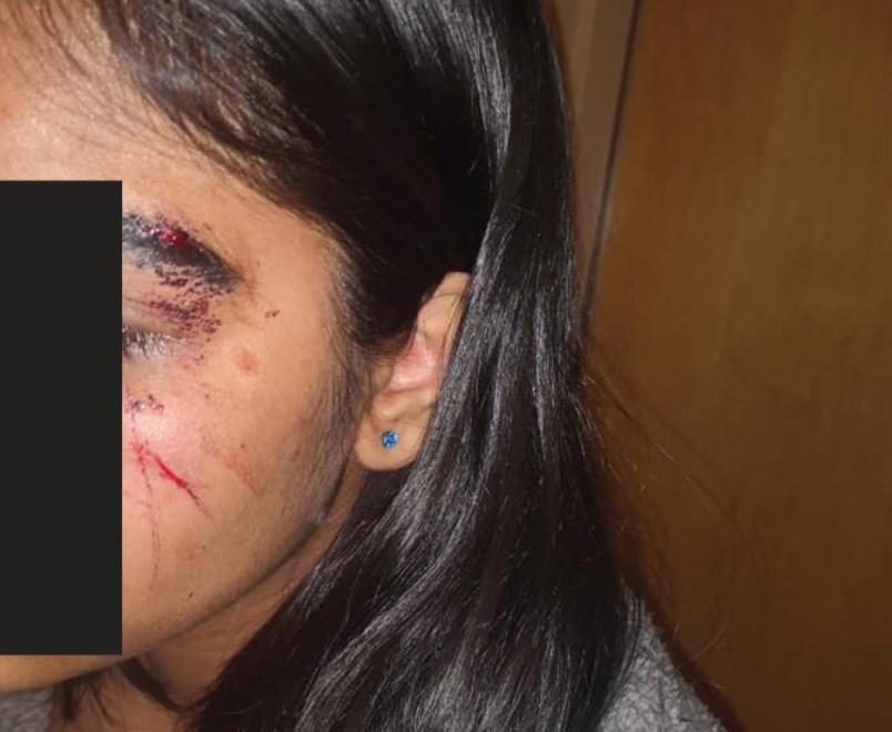 teen-face-citadel-assault