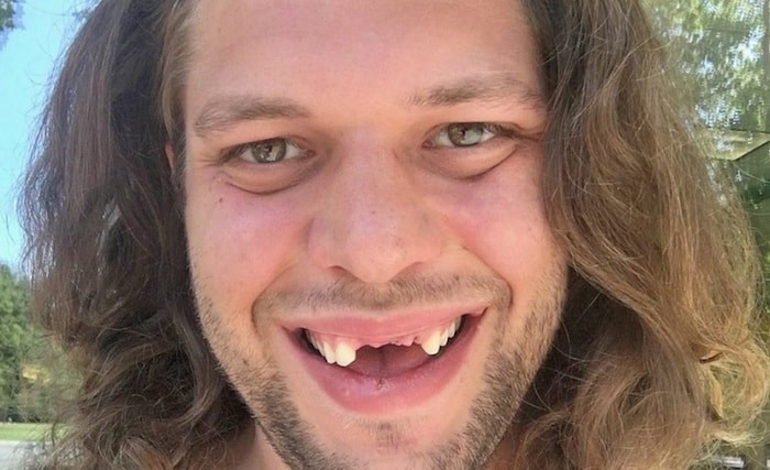 Taylor Fawcett lost his three front teeth this summer.