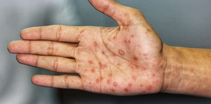 Photo: Syphilis infection / Shutterstock